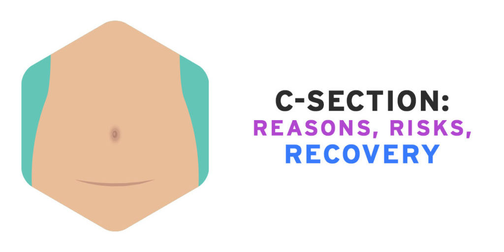 c section